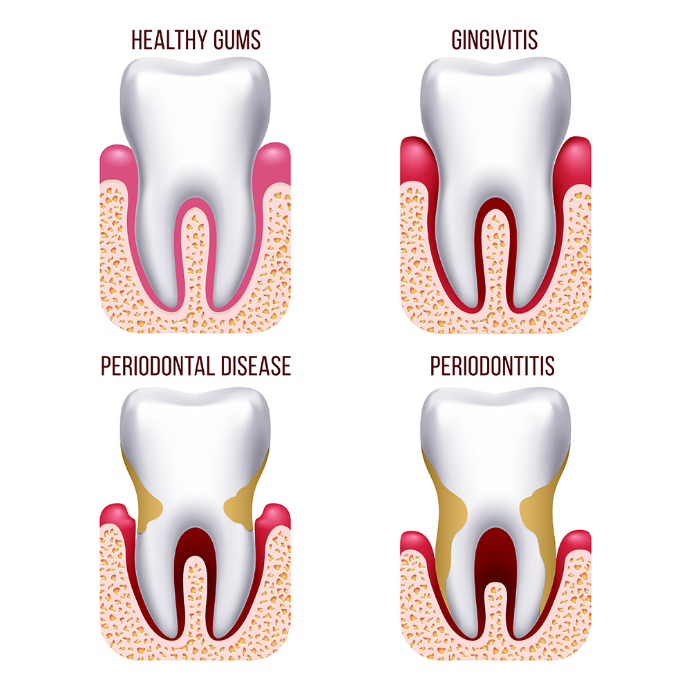 Graphic design image showing 4 teeth and the stages of gingivitis